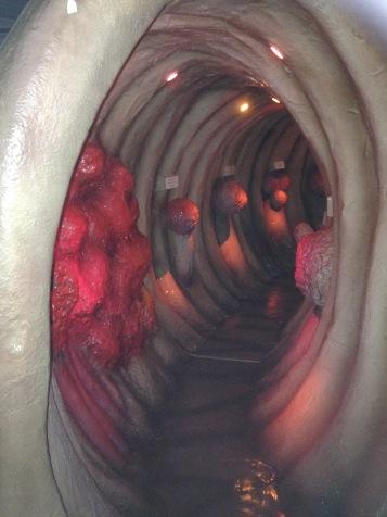Ein Darm von innen / An intestine from the inside